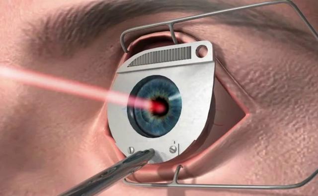 Коррекция зрения по ОМС: можно ли бесплатно сделать лазерную коррекцию по полису