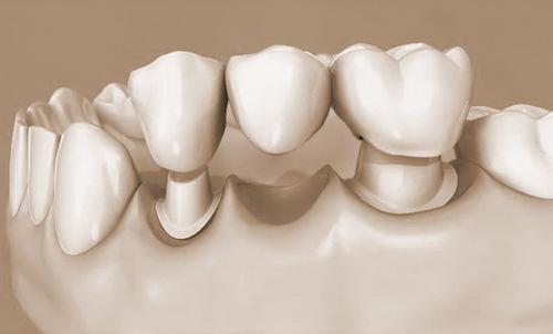 Как получить налоговый вычет за лечение и протезирование зубов: документы