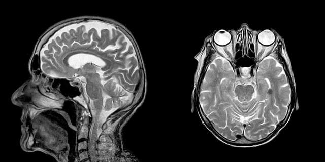 Можно ли сделать МРТ бесплатно по полису: порядок получения направления