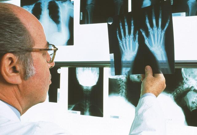 Артрит и инвалидность: кому положена и при каких видах артрита можно оформить
