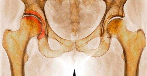 В каких случая и кому дают ли инвалидность при коксартрозе тазобедренного сустава