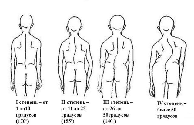 Какая группа инвалидности при сколиозе 3 степени и других заболевания позвоночника
