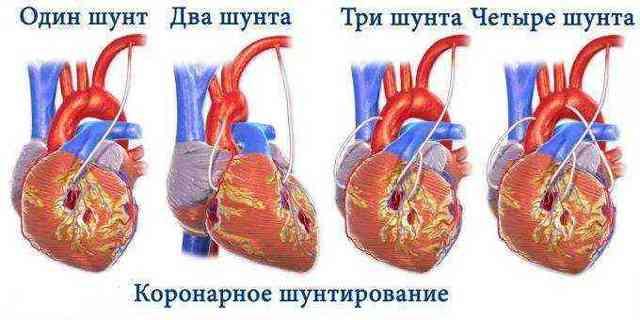 Инвалидность после операции шунтирования на сердце: какая группа положена